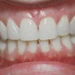 behandelingen-gezonde-tandvlees