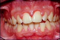 behandelingen-ontstoken-tandvlees