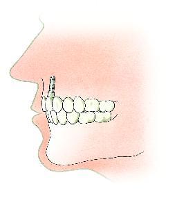 behandelingen-tandimplantaat